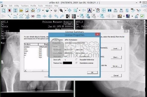 efilm(医学图像处理软件)